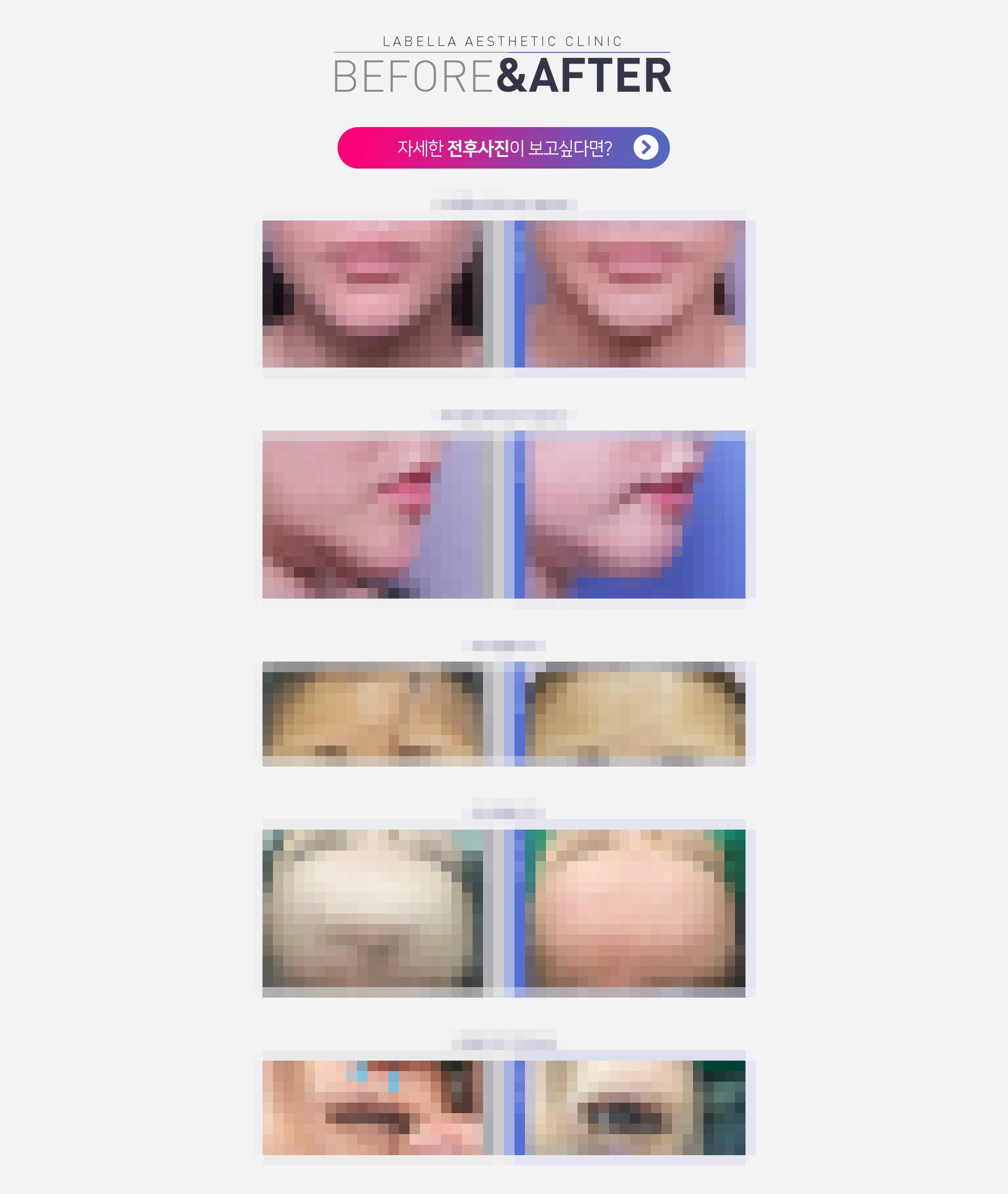 강남 신논현역 피부과 성형외과 라벨라 이물질제거 전후사진