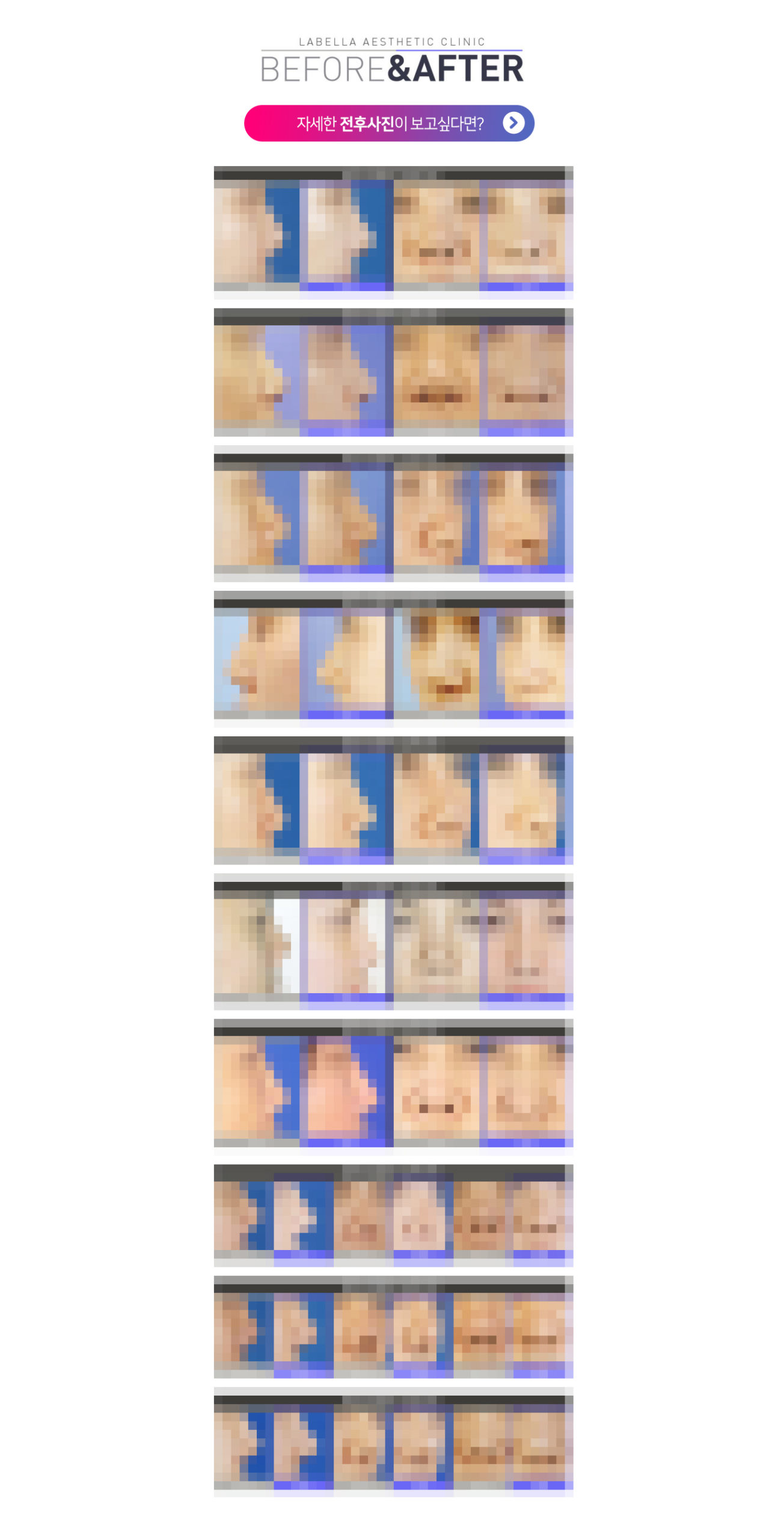 강남 신논현역 피부과 성형외과 라벨라 짧은코들창코 전후사진