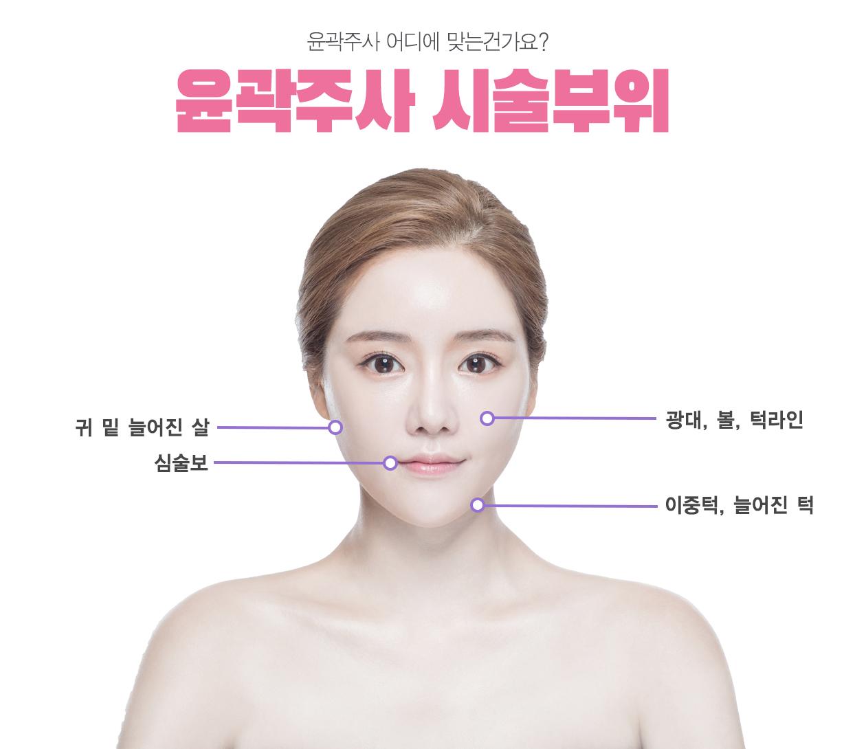 윤곽주사 시술부위 귀밑늘어진살 심술보 광대,볼, 턱라인 이중턱, 늘어진턱