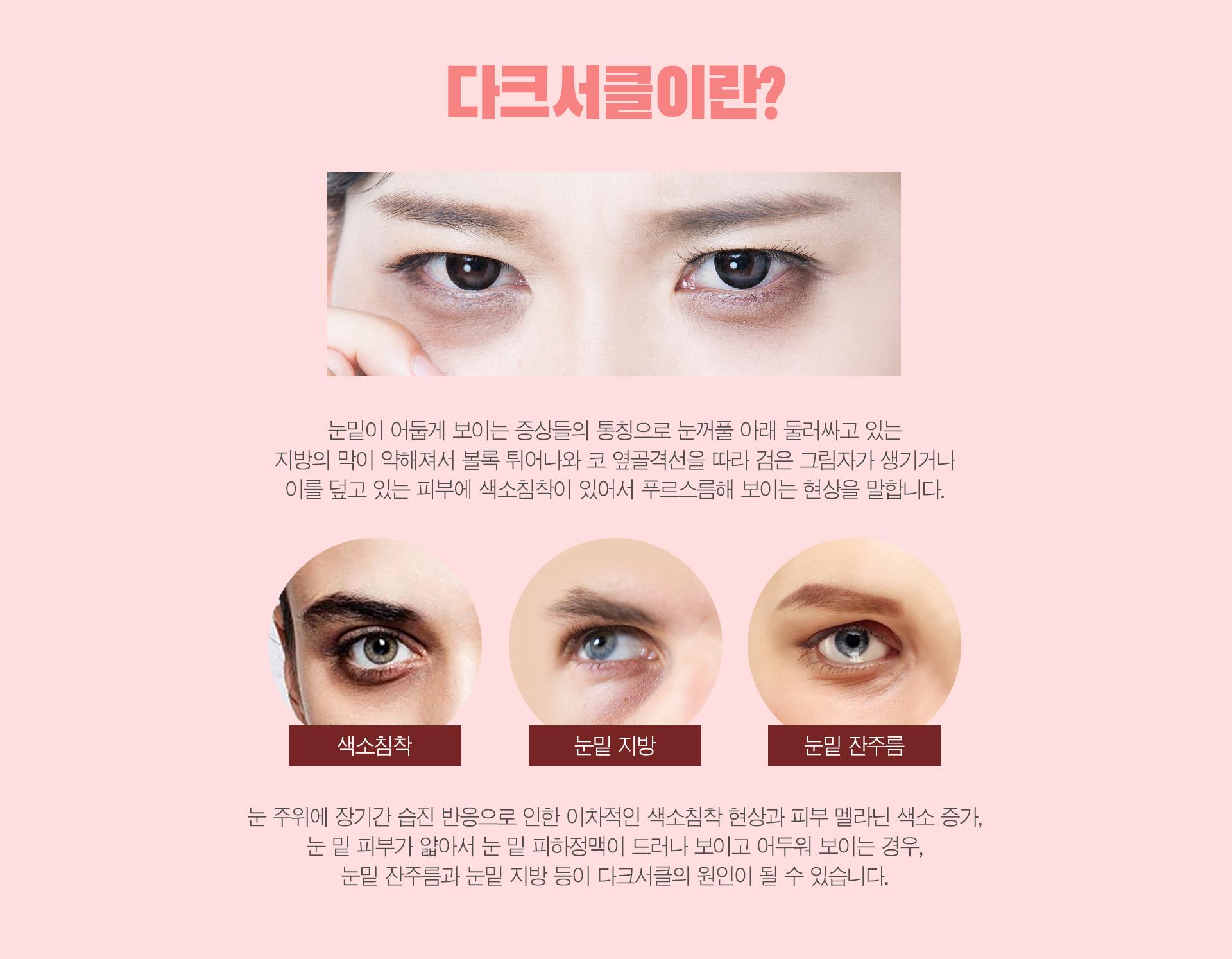 강남 신논현역 피부과 성형외과 라벨라 다크서클이란? 눈밑이 어둡게 보이는 증상들의 통칭으로 눈꺼풀 아래 둘러싸고 있는 지방의 막이 약해져서 볼록 튀어나와 코 옆골격선을 따라 검은 그림자가 생기거나 이를 덮고 있는 피부에 색소침착이 있어서 푸르스름해 보이는 현상을 말합니다. 눈 주위에 장기간 습진 반응으로 인한 이차적인 색소침착 현상과 피부 멜라닌 색소 증가, 눈 밑 피부가 얇아서 눈 밑 피하정맥이 드러나 보이고 어두워 보이는 경우, 눈밑 잔주름과 눈밑 지방 등이 다크서클의 원인이 될 수 있습니다.