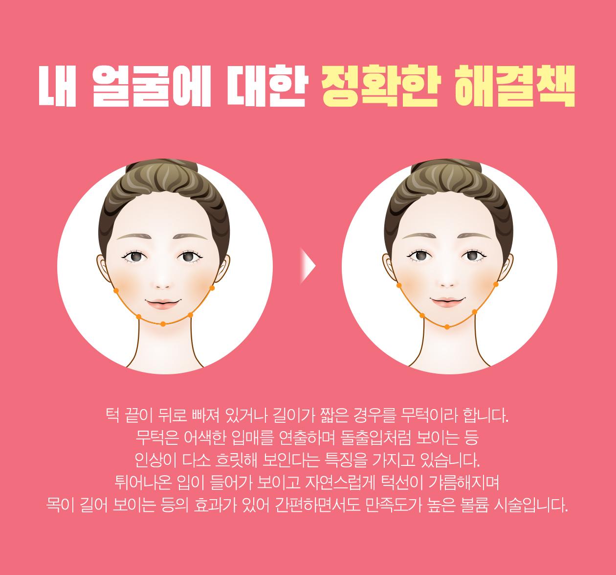 강남 신논현역 피부과 성형외과 라벨라 턱 끝이 뒤로 빠져 있거나 길이가 짧은 경우를 무턱이라 합니다. 무턱은 어색한 입매를 연출하며 돌출입처럼 보이는 등 인상이 다소 흐릿해 보인다는 특징을 가지고 있습니다. 튀어나온 입이 들어가 보이고 자연스럽게 턱선이 갸름해지며 목이 길어 보이는 등의 효과가 있어 간편하면서도 만족도가 높은 볼륨 시술입니다.