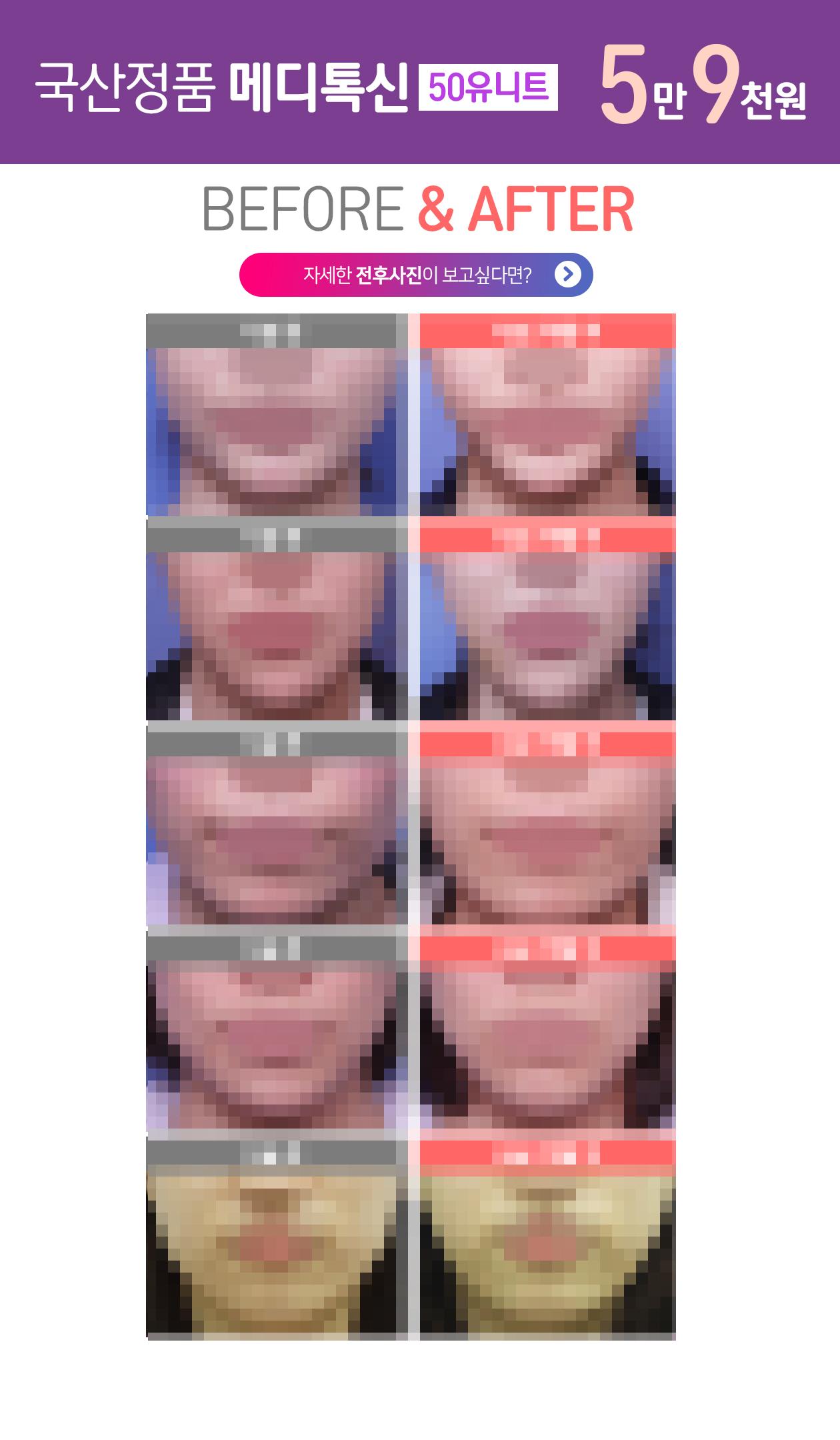 얼굴보톡스 전후사진