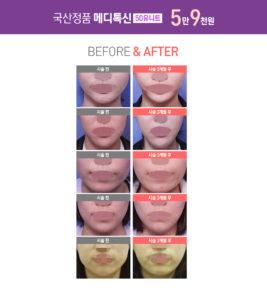 국산 정품 메디톡신 50유니트 5만9천원 전후사진