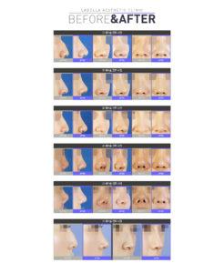 코재수술 전후사진